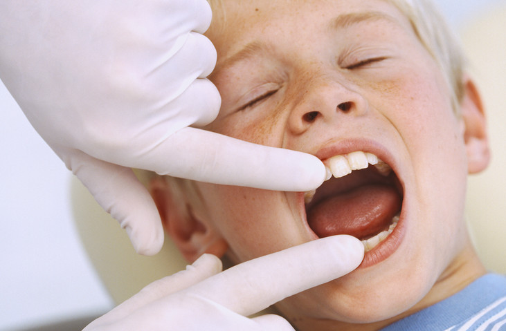4 Common Q&A's for Parents Considering Braces for their Children