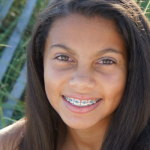 Can Your Gums Grow Over Your Braces?