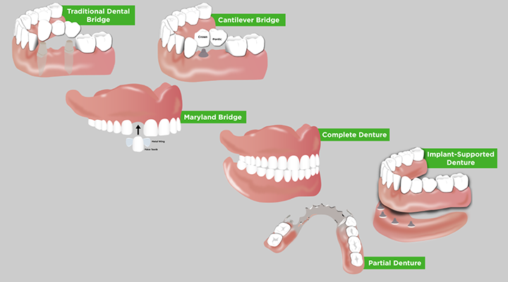 Understand the oral and overall health concerns of missing teeth and the impact of getting dentures as an older adult.