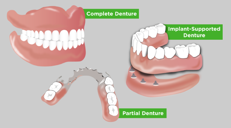 Three diagrams show how complete, partial, and implant-supported dentures operate in the mouth.