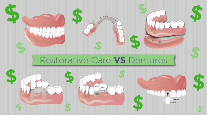 Cost Considerations | Restorations and Dentures for Older Adults