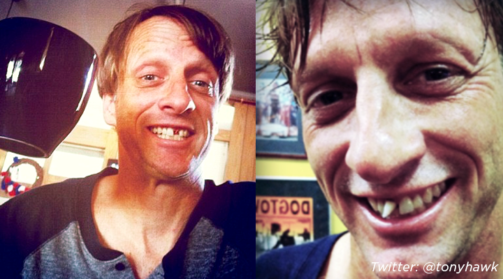 Pro skater Tony Hawk flashes a crooked smile on his @tonyhawk Instagram in 2011.