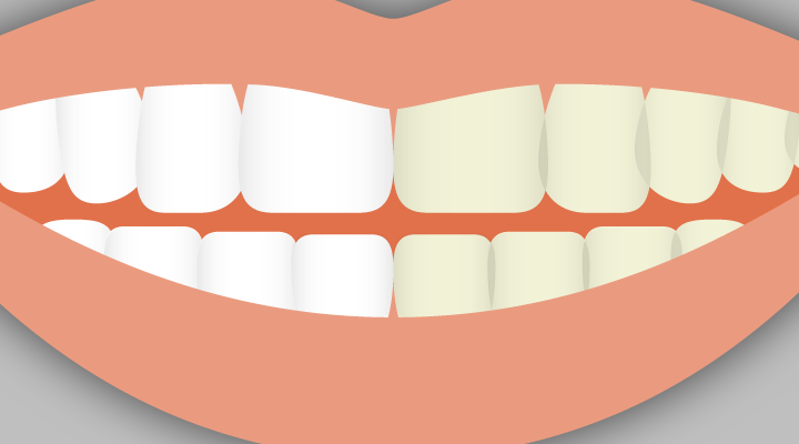 Cosmetic dental procedures, like cosmetic makeup, exist to change the way the mouth looks. Learn more about what classifies a dental procedure as cosmetic.